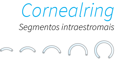 Cornealring: Segmentos intraestromais