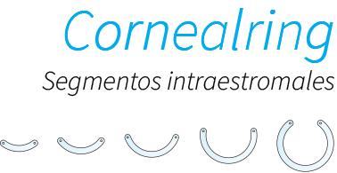 Cornealring: Segmentos intraestromales